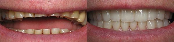 Smile Gallery -Bruxism