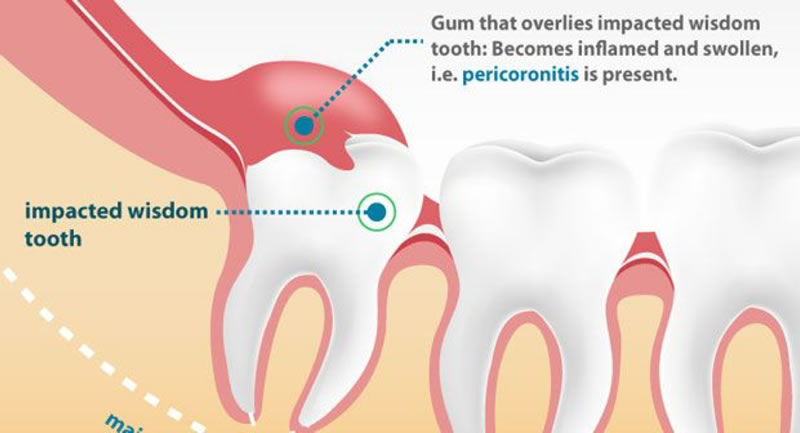 Tooth Extraction - Illustration