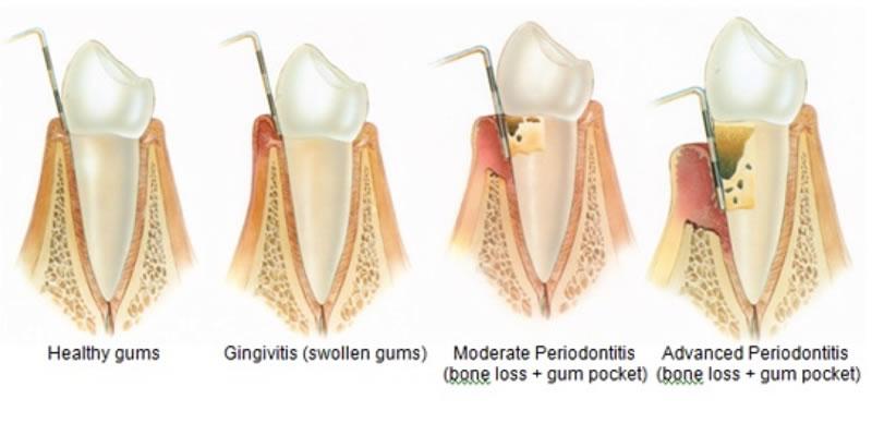 Gum Disease Treatment - Illustration