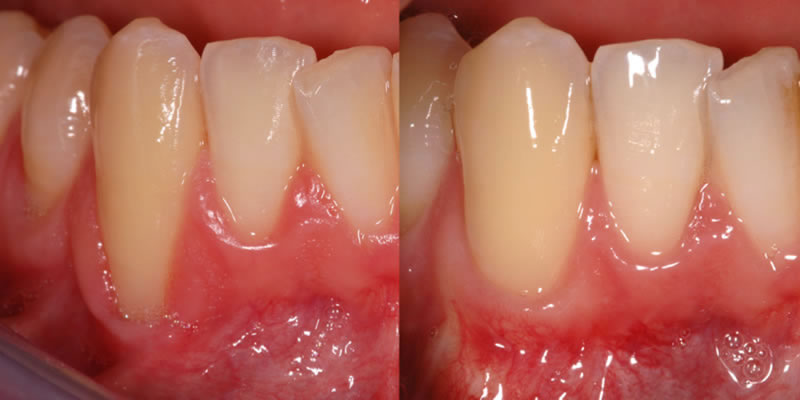 Gum Disease Treatment - before and after pic