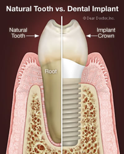 Dental Implants - Illustration