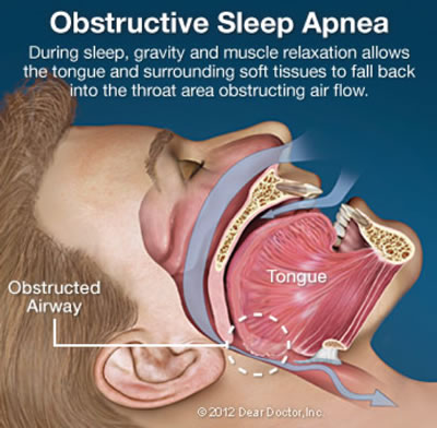 Obstructive Sleep Apnea - Normal Anatomy & Function