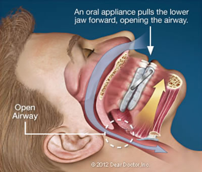 Snoring & Sleep Apnea - Open Airway